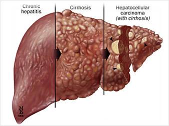 Comment se transmet le virus qui cause lhpatite virale?